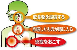 誤嚥性肺炎.jpg56.jpg