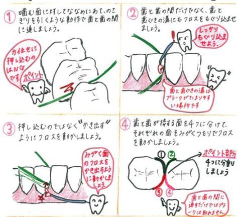 565フロス使い方(イラスト 太渕).jpg