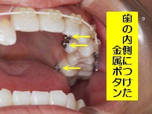 DSCF0015(56).JPG34.jpg
