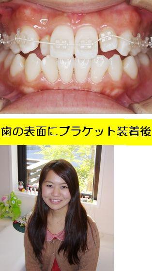 DSCF0019(38).JPG2.JPG34.jpg