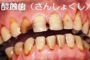 maru 酸蝕歯.jpg5656 2323.jpg